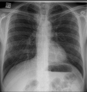 Ejemplo de Radiografía de Torax